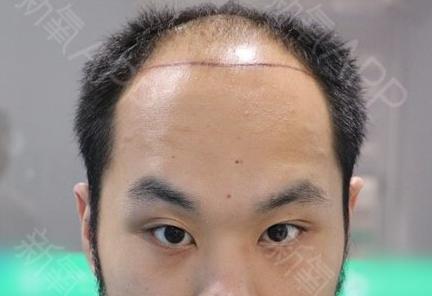 头顶加密种植